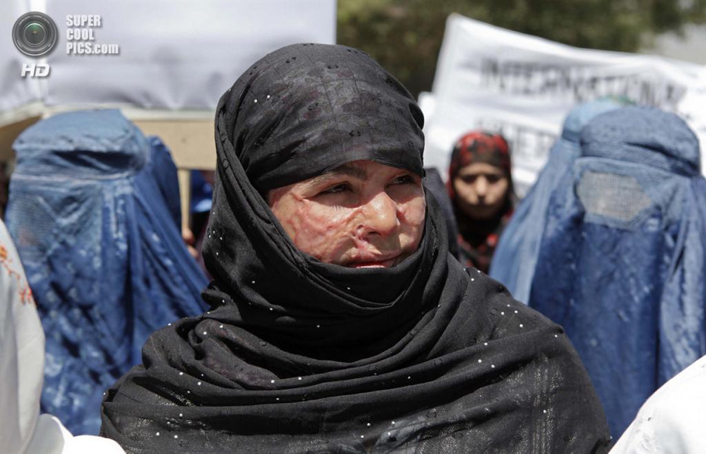Афганистан. Кабул. 11 июля 2012 года. 16-летняя Момтаз — жертва кислотной атаки — участвуют в протесте против недавней публичной экзекуции молодой женщины в провинции Парван. (REUTERS/Omar Sobhani)