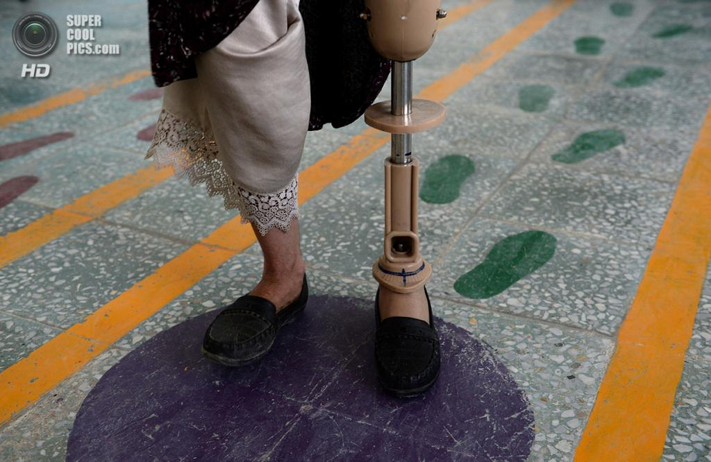 Афганистан. Кабул. 5 июня 2013 года. Афганка-инвалид учится управляться протезом в госпитале Красного Креста для жертв войны и инвалидов. (SHAH MARAI/AFP/Getty Images)