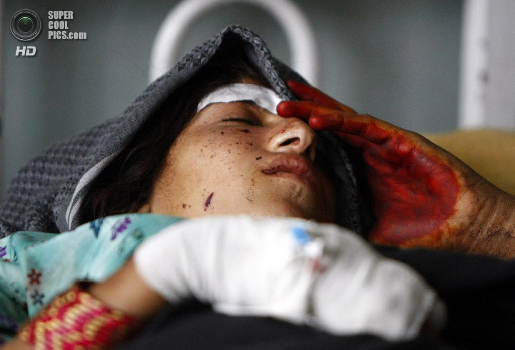 Афганистан. Лагман. 16 сентября 2012 года. Раненая женщина в госпитале, пострадавшая от авиаударов НАТО. (REUTERS/Parwiz)