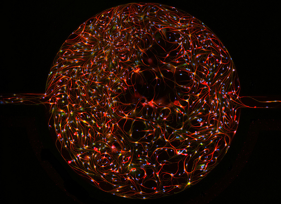 Первичные астроциты крысиного мозга, культивированные в устройстве SynVivo BBB. (Ashley M. Smith)