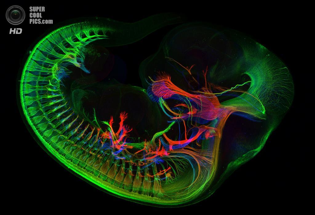 Периферические нервы мышиного эмбриона. (Zhong Hua)