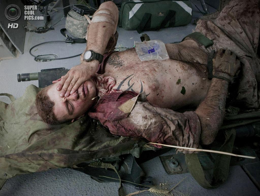 Афганистан. Сангин, Гильменд. 4 июня 2011 года. Бёрнесс Бритт, раненый шрапнелью в шею и голову. (AP Photo/Anja Niedringhaus)