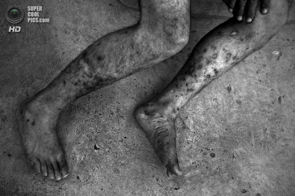 Мексика. Сьюдад-Хуарес, Чиуауа. Многочисленные следы иньекций героина на ногах мексиканца, депортированного из США. Он попробовал наркотики и стал наркоманом уже в США, после чего его депортировали. (Louie Palu/ZUMA Press)