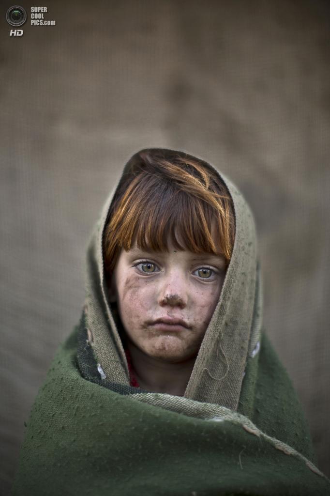 Лайба Хазрат, 6 лет. (AP Photo/Muhammed Muheisen)