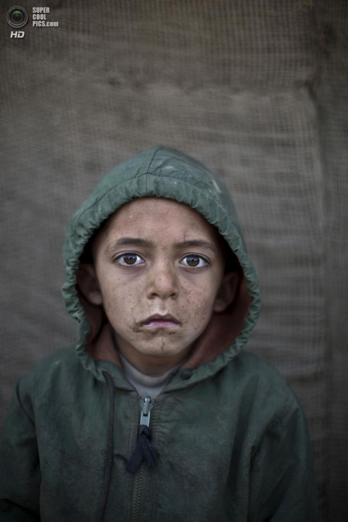 Вахид Вазир, 6 лет. (AP Photo/Muhammed Muheisen)