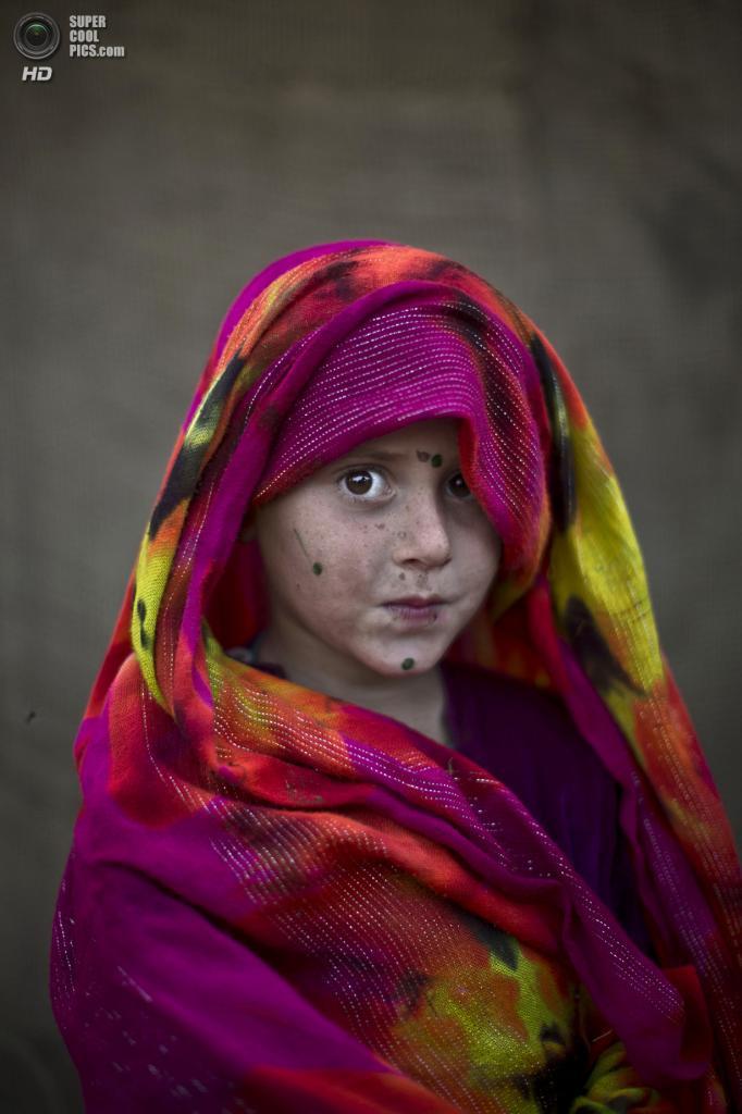Робина Хасиб, 5 лет. (AP Photo/Muhammed Muheisen)