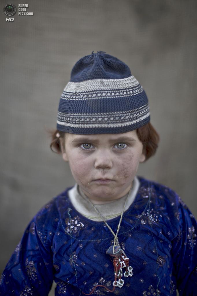 Басмина, 3 года. (AP Photo/Muhammed Muheisen)