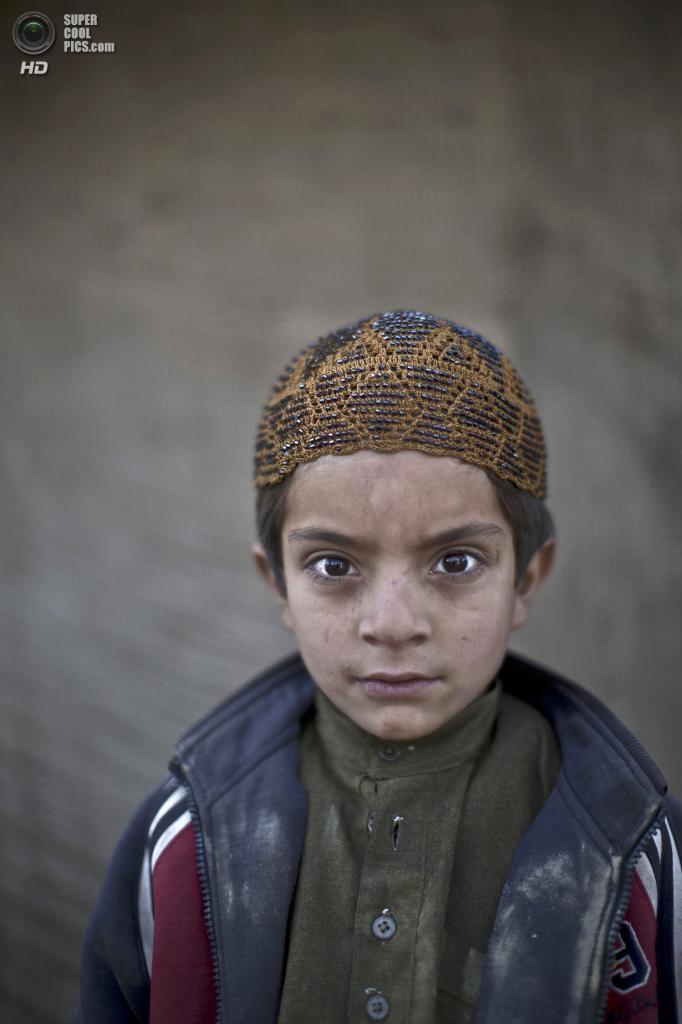 Аллам Ахмад, 6 лет. (AP Photo/Muhammed Muheisen)