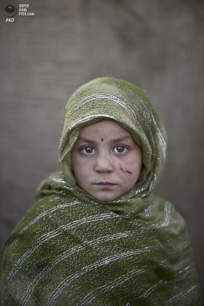 Мадина Джума, 4 года. (AP Photo/Muhammed Muheisen)
