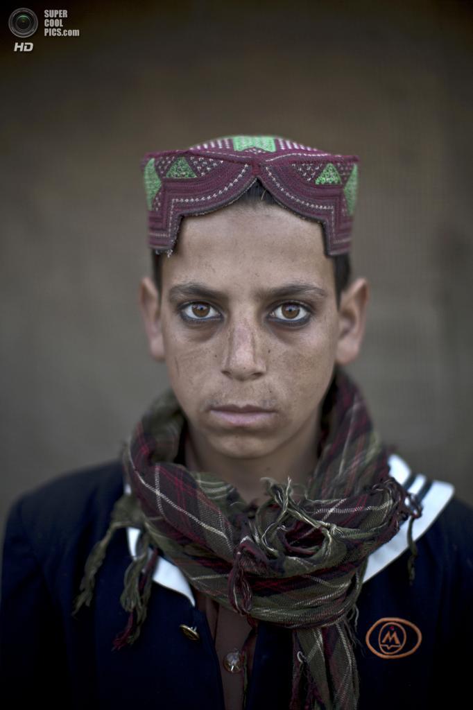 Ахтар Бабрек, 13 лет. (AP Photo/Muhammed Muheisen)