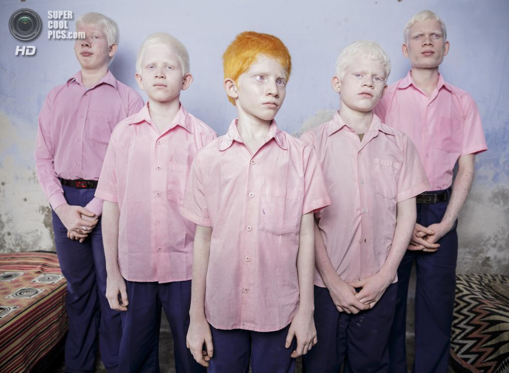 People — Staged Portraits Single, 1-ое место: Индия. Западная Бенгалия. 25 сентября 2013 года. Слепые мальчики-альбиносы в миссионерской школе Вивикенанды — в одном из немногих учебных заведений Индии для слепых. (AP Photo/Brent Stirton, Getty Images)