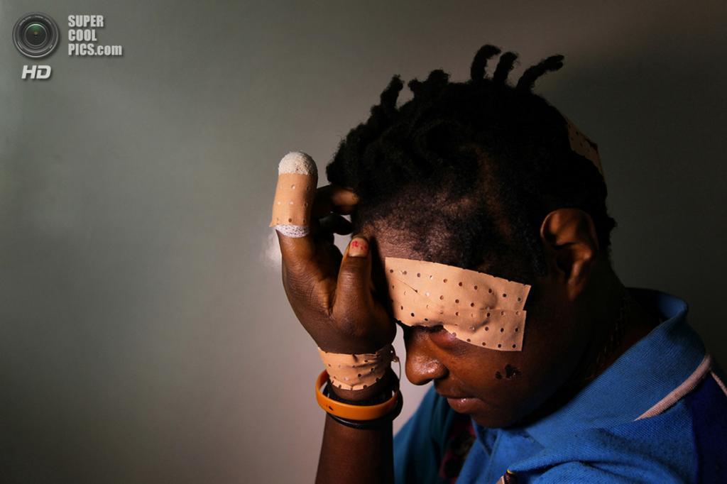 22-летняя Марлин Марк возвращается в больницу, где она лечится после нападения мужа с ножом для расчистки кустарника. Место съёмки: Папуа — Новая Гвинея. Тари, Гела. (Kate Geraghty/2014 Sony World Photography Awards)