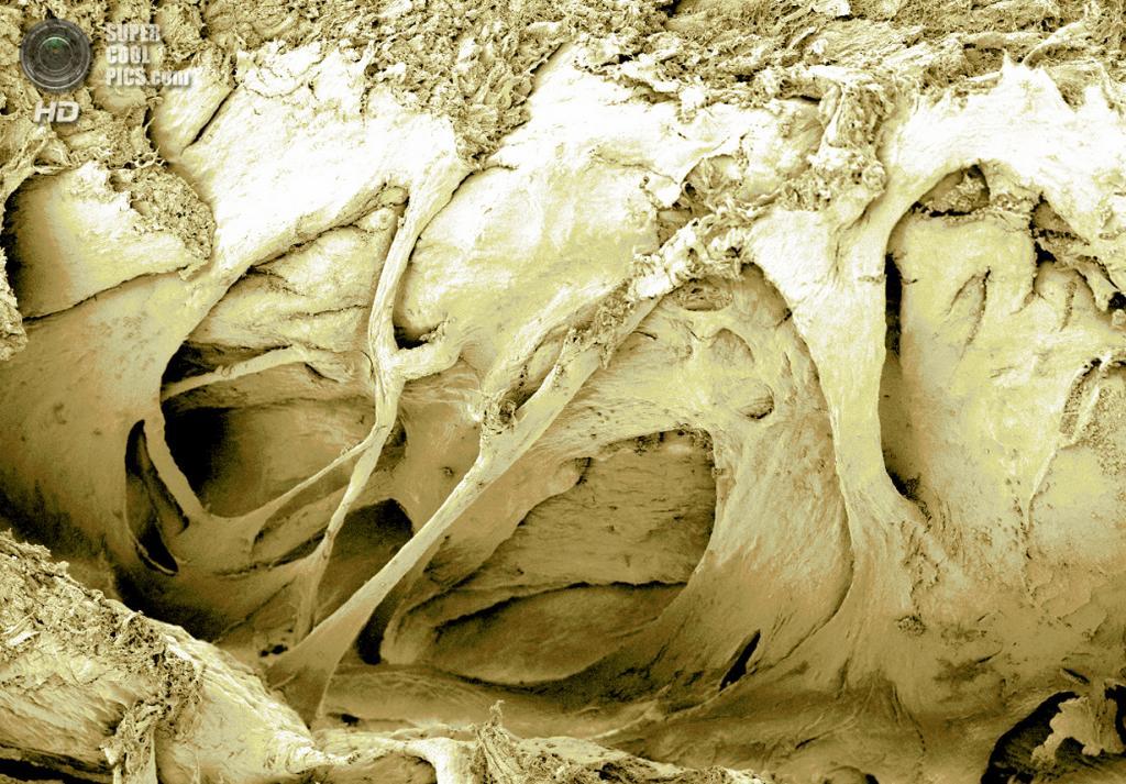 Микро: Мышечные волокна из сердца воробья. (P. Kelly)
