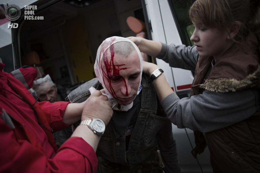 Украина. Донецк. 28 апреля. Пророссийский активист с пробитой головой после стычки. (AP Photo/Manu Brabo)