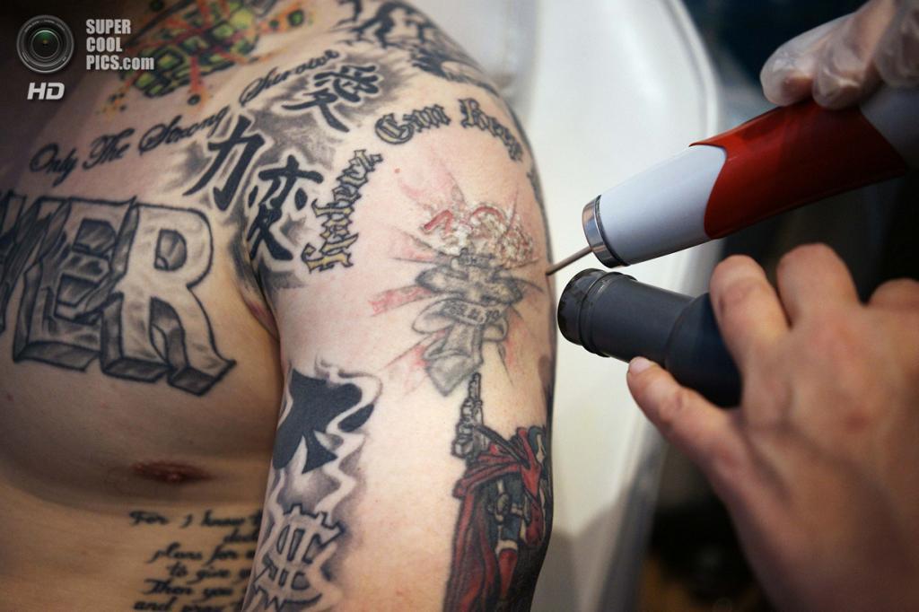 США. Денвер, Колорадо. 23 мая. Шейн Крэмси удаляет тюремные наколки в салоне по удалению татуировок «What Were You Inking?». (REUTERS/Rick Wilking)