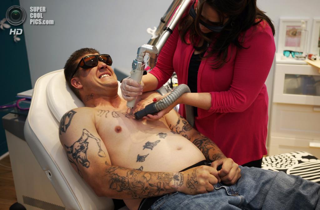 США. Денвер, Колорадо. 23 мая. Чад Ламберт удаляет тюремные наколки в салоне по удалению татуировок «What Were You Inking?». (REUTERS/Rick Wilking)