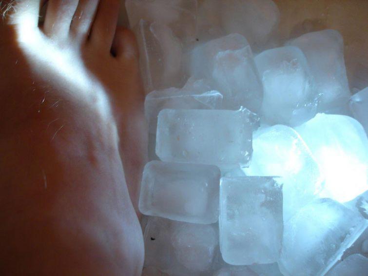 Принцип действия такой же, как при ожоге. Лёд может уменьшить отек и оказать местное анестезирующее действие, давая временное облегчение от зуда.