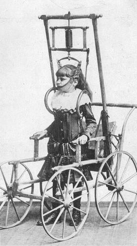 Спинной аппарат доктора Кларка рекламировался в 1878 году как аппарат, позволяющий людям с проблемами в спине ходить (от нескольких минут до нескольких часов)
