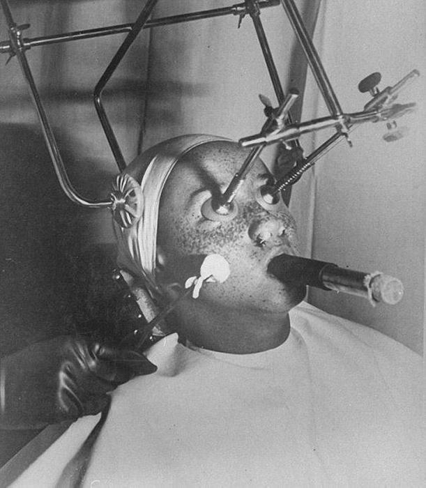 """Это вовсе не сцена пыток из фильма ужасов. Такая машина когда-то использовалась, чтобы """"заморозить"""" веснушки при помощи углекислого газа. Глаза и ноздри пациента закрывались герметичными пробками, а дышать во время процедуры нужно было через специальную трубку."""