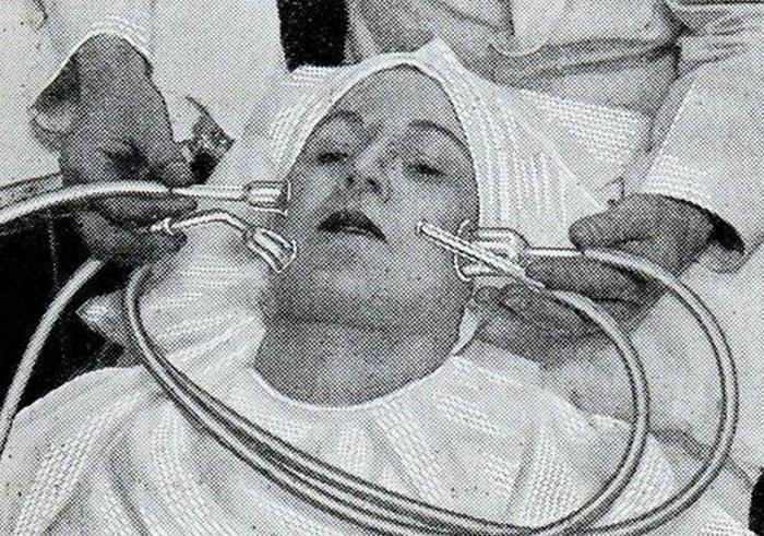 Выдавливать прыщи всегда было не очень хорошей идеей. В 1930-e годы была придумана машина, которая высасывала прыщи прямо из кожи, делая ее гладкой. Однако, ее форсунки были выполнены из стекла, и давление было трудно контролировать.