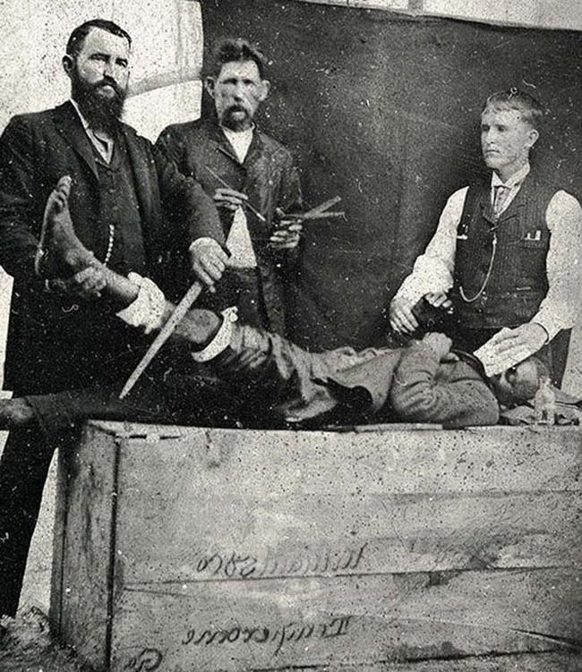 Операция без анестезии. Пациентам перед операцией давали лишь немного эфира, вот и весь наркоз, 1885 год