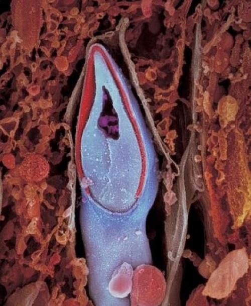 Сперматозоид в разрезе. В головке содержится весь генетический материал