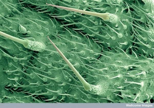 Жгучие волоски листьев крапивы
