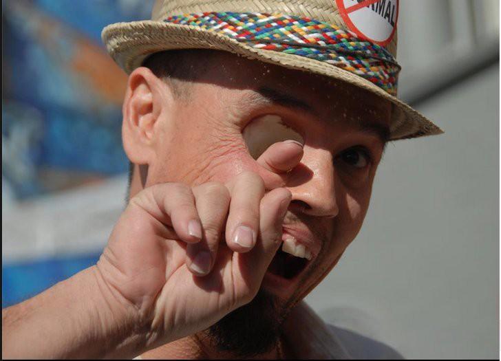 Это Билли Оуэн, и он действительно может высунуть палец из глазницы через рот. Из-за редкой формы рака Билли потерял пол-лица и правый глаз. Хирурги удалили большую часть его носоглотки и верхнего нёба. Билли достаточно вытащить протез-пластинку, чтобы просунуть в глазницу палец. Сейчас Билли зарабатывает на жизнь тем, что играет зомби в различных фестивалях и шоу.
