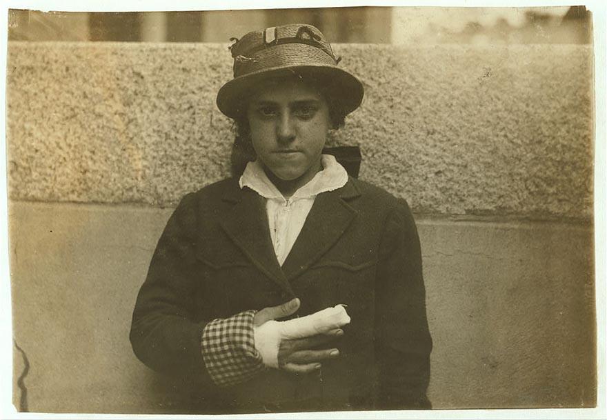 Эстель Пуарье, съёмщица на гранитном заводе, получила рваную рану указательного и среднего пальца правой руки, Фолл-Ривер, штат Массачусетс.