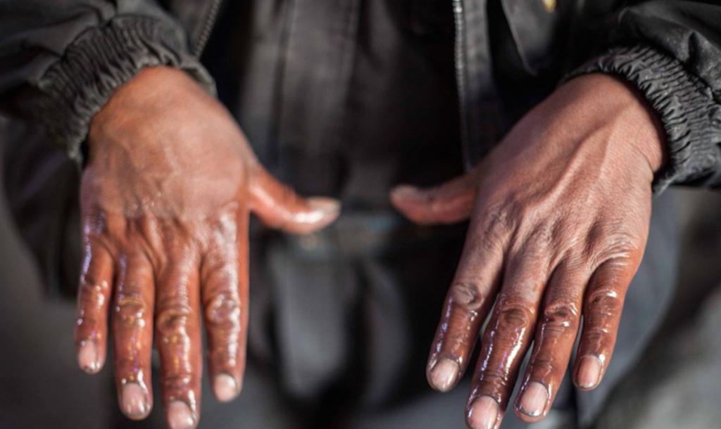 Отсутствие канализации и горные работы привели к сильному загрязнению земли Ла-Риконкада ртутью. Это вещество оказывает крайне негативное влияние на нервную систему, вызывает зуд, жжение и обесцвечивание кожи.