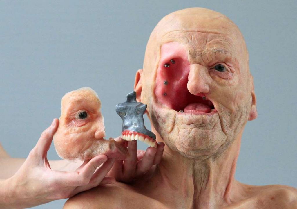 2. Протез лица, напечатанный на 3D-принтере бельгийской компанией Materialise.