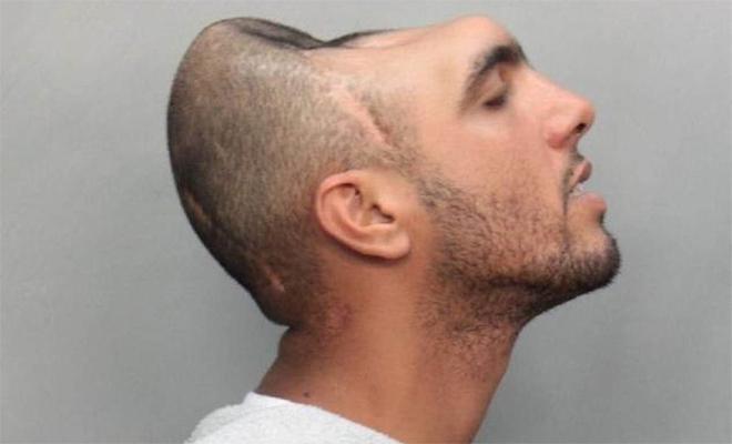 Человек с половиной головы