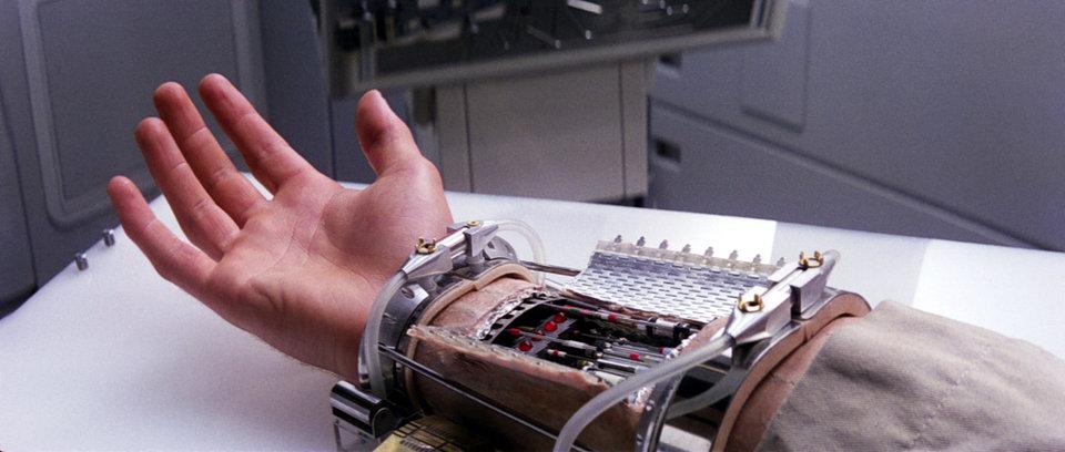5. Бионические протезы