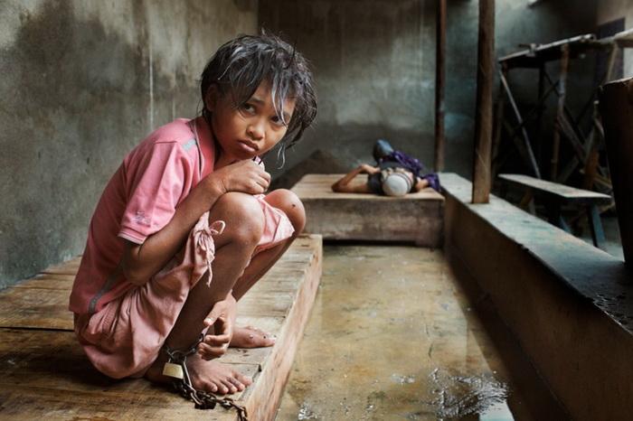Шокирующая правда о психиатрических лечебницах в Индонезии