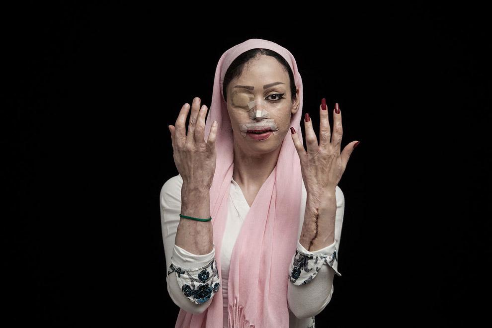 37-летняя-жительница-Ирана-отказалась-выйти-замуж.-Теперь-она-выглядит-вот-так.-После-4-литров-кислоты