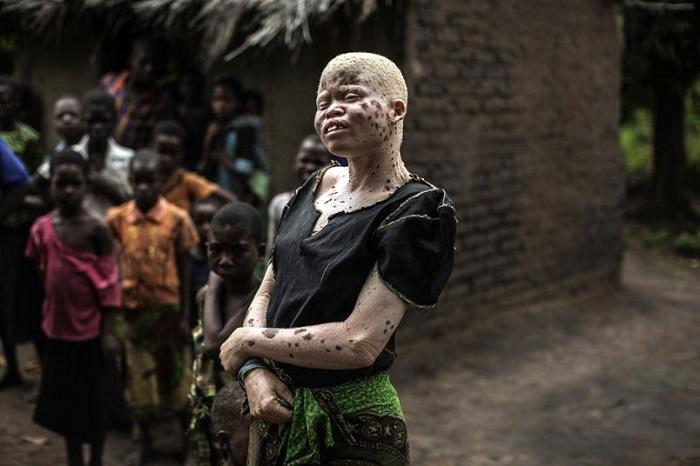 Albinos_TINIMA20150422_0808_19