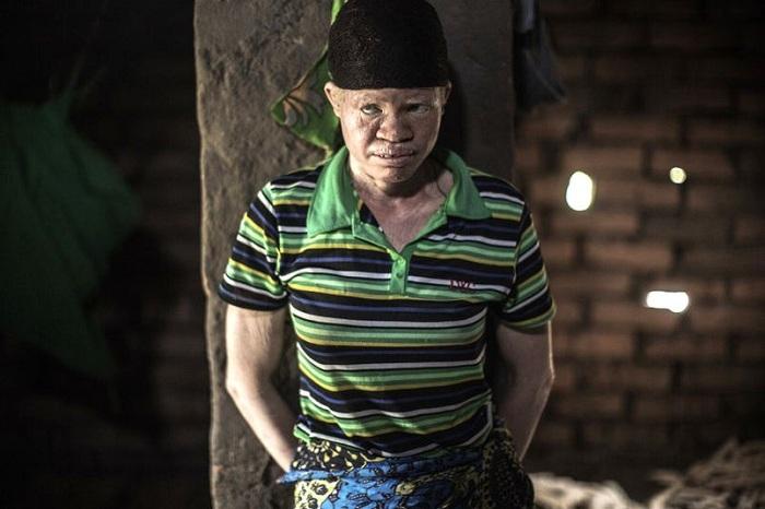 Albinos_TINIMA20150422_0811_19