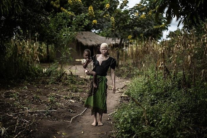 albinosy-presleduemye-belye-11