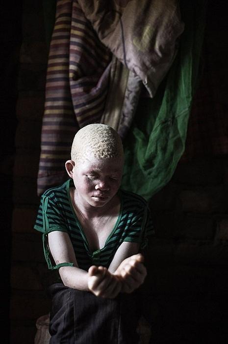 albinosy-presleduemye-belye-12