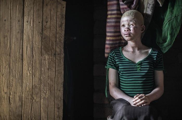 albinosy-presleduemye-belye-4