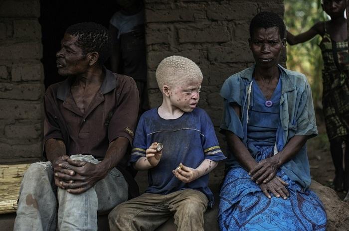 albinosy-presleduemye-belye-5