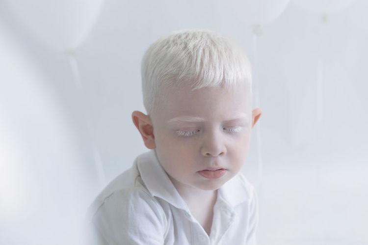 albinosy-24-3