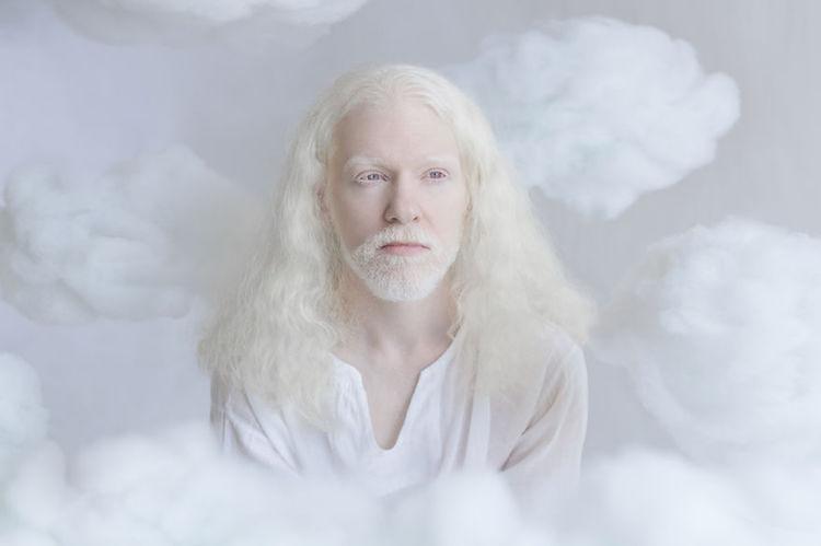 albinosy-24-5