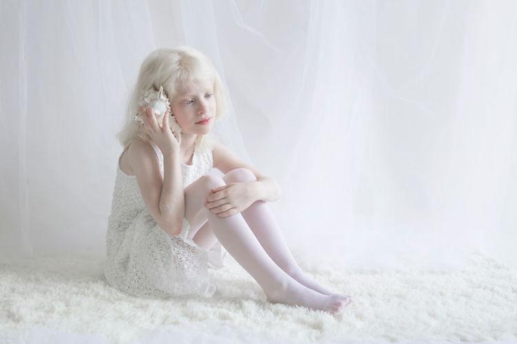 albinosy-24-9