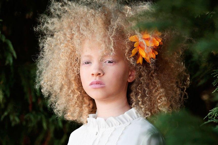 8-летняя девочка Ава Кларк — афроамериканка-альбинос