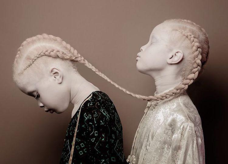 albinoski-20-1