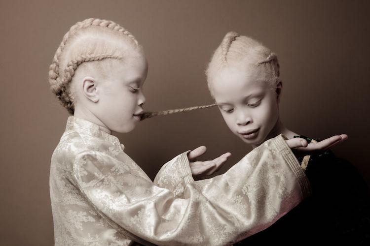 albinoski-20-2