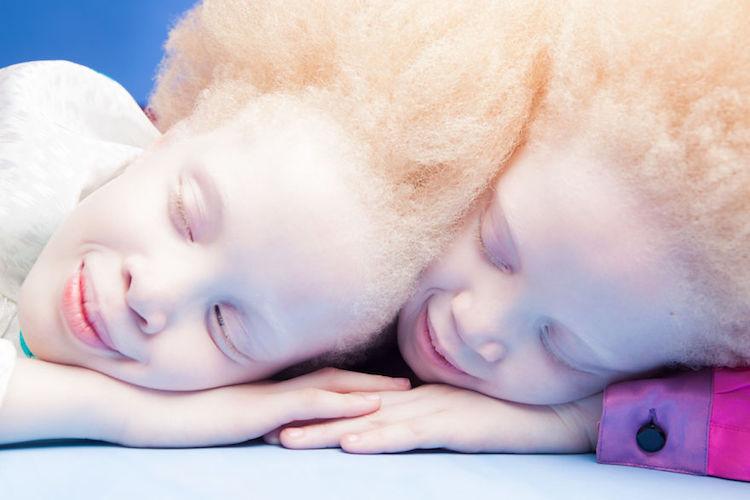 albinoski-20-3