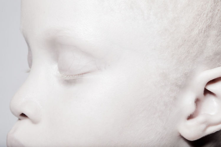 albinoski-20-4