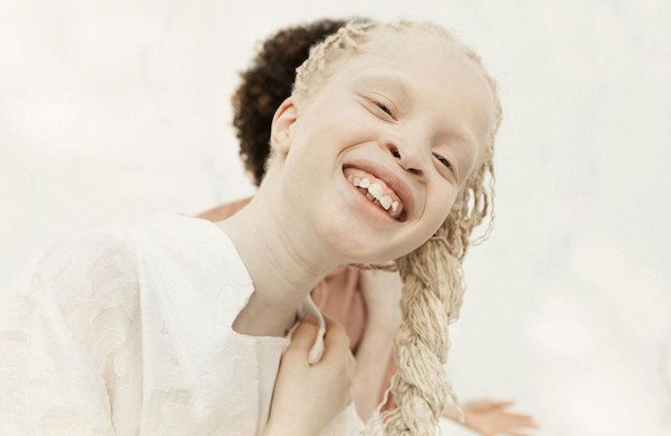albinoski-20-6